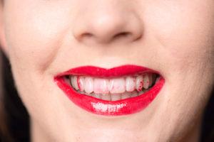 lipstick-on-teeth