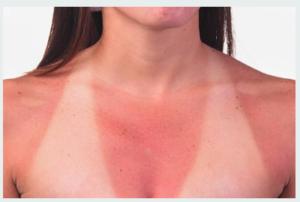 tan-lines